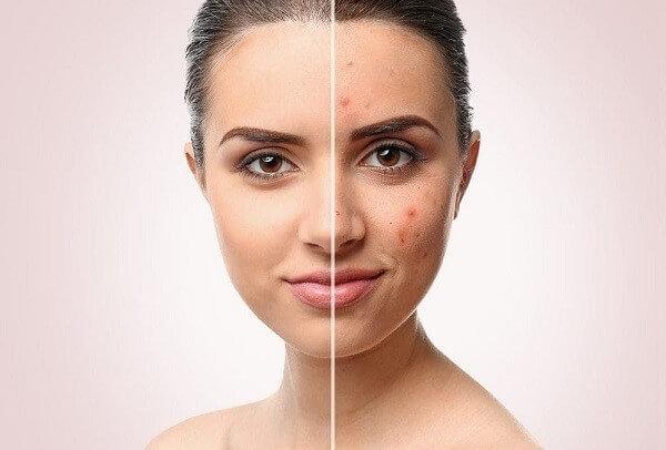 Bạn có biết cách trị mụn và dưỡng trắng da hiệu quả?