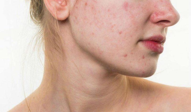 Da mụn đòi hỏi sự chăm sóc kỹ lưỡng hơn các loại da khác - kem dưỡng trắng da
