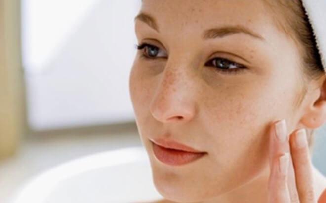 Những vết thâm sạm trên da khiến phụ nữ sau sinh tự ti