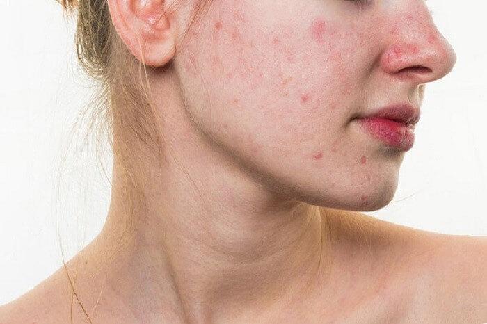 Dấu hiệu da bị tổn thương thường là nổi mụn bất thương, bong tróc, lỗ chân lông to, dễ kích ứng với tác động từ bên ngoài