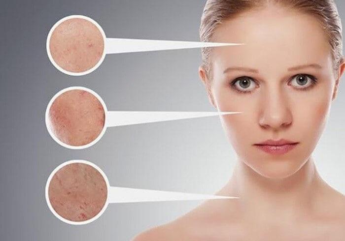 Mụn cám là những nốt mụn li ti xuất hiện thành từng cụm trên da