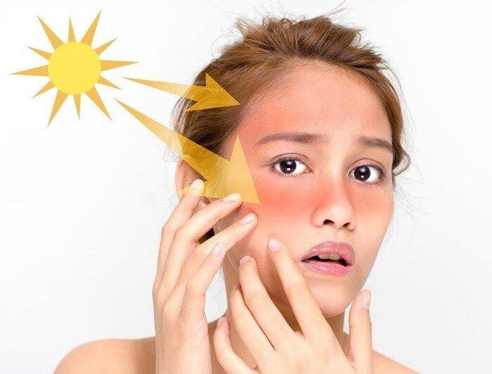 Tác động của tia UV khiến làn da dễ bị lão hóa