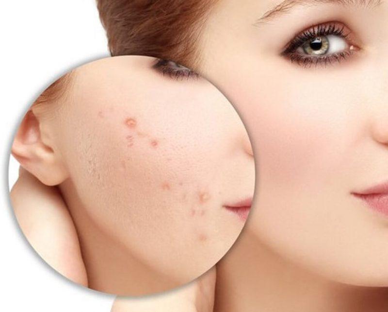 Thâm mụn là tình trạng da khá phổ biến
