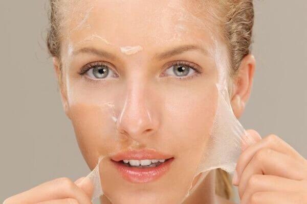 Áp dụng phương pháp peel vào điều trị nám da làm trắng sáng hiệu quả