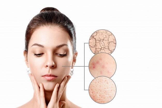 Da khô, nổi mẩn đỏ và lỗ chân lông to chứng tỏ loại sữa rửa mặt đang dùng chưa phù hợp
