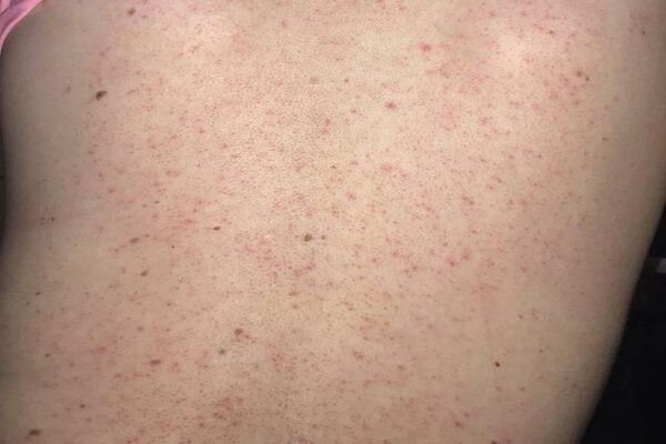 Đây là giai đoạn mà da vùng lưng bị viêm nang lông và dày sừng - kem trị mụn lưng