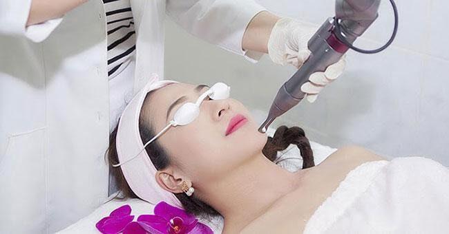 Laser là phương pháp hiệu quả nhất để điều trị nám hiện nay