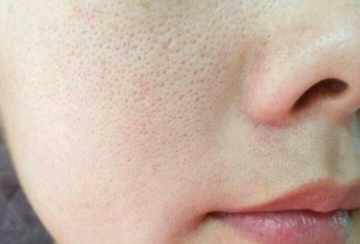 Lỗ chân lông to khiến da trông thiếu sức sống và gây mất thẩm mỹ - serum trị thâm se khít lỗ chân lông