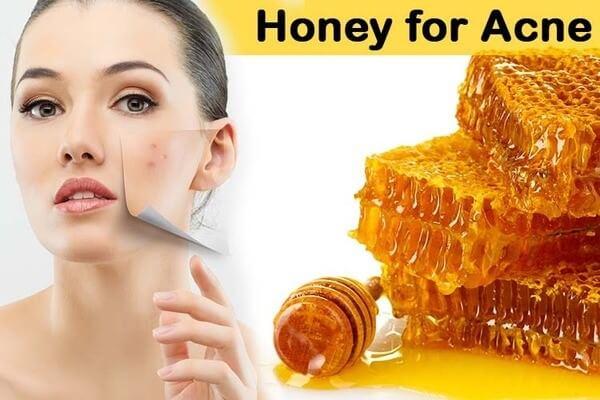 Mật ong thành phần từ thiên nhiên hiệu quả trong kháng viêm bởi mụn