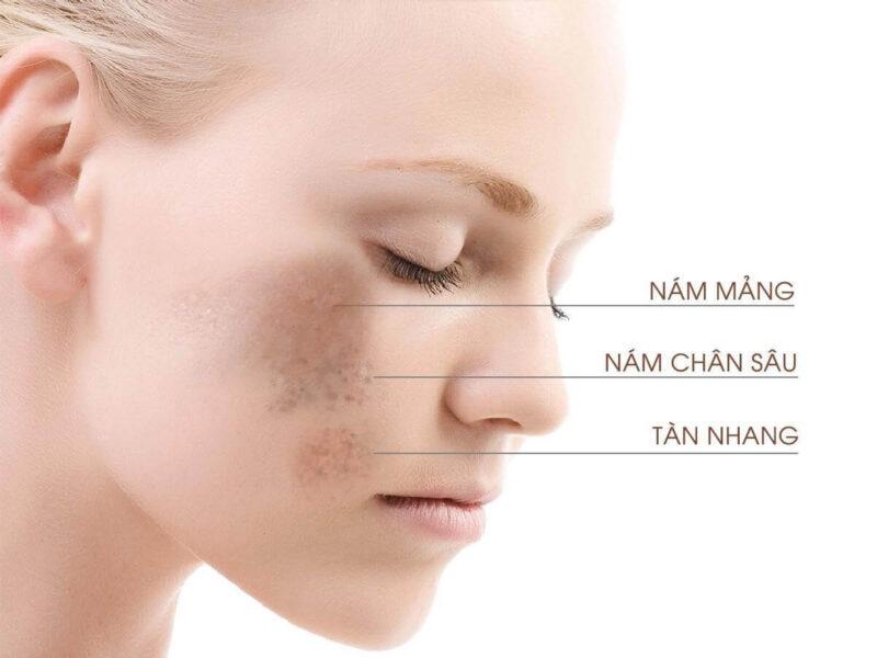 Một số dạng nám da thường gặp - bị nám da mặt phải làm sao