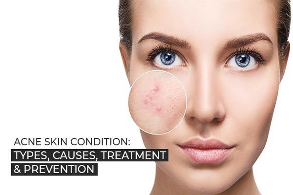 Mụn hình thành do đâu - kem trị mụn dưỡng da