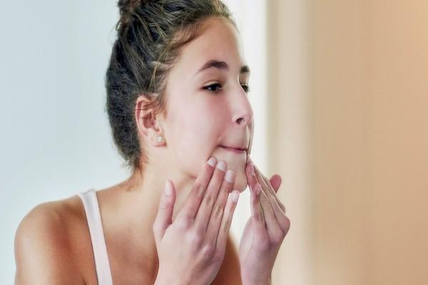 Mụn là nỗi ám ảnh của rất nhiều người hãy thử sử dụng serum có chứa vitamin E - Serum vitamin E có tác dụng gì