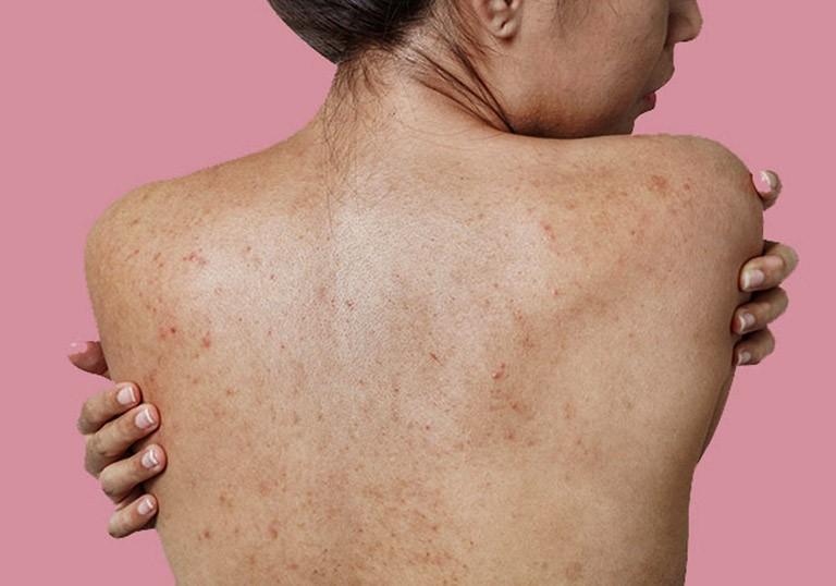 Mụn ở vùng da lưng - kem trị mụn lưng