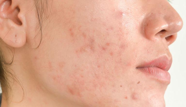 Mụn viêm là nguyên nhân trực tiếp dẫn đến sự xuất hiện vết thâm - serum trị thâm cho da dầu