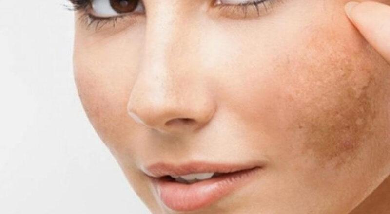 Nám da thường xuất hiện theo một vùng da - trị nám tàn nhang