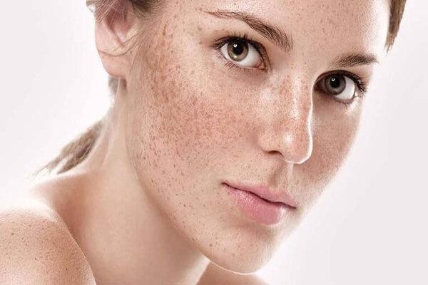 Nám da tình trạng trăn trở của nhiều phái đẹp - serum dưỡng trắng da trị nám