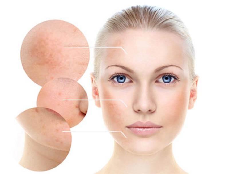 Nám da tuy không sậm màu như vết thâm mụn nhưng lại khó điều trị hơn