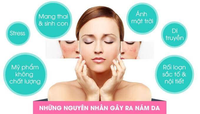 Những nguyên nhân chính gây nám da - bị nám da mặt phải làm sao