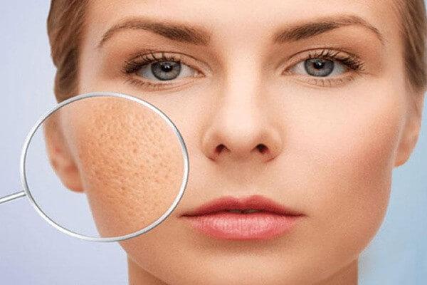Những vấn đề của lỗ chân lông luôn khiến chúng ta đau đầu trong cách khắc phục - serum dưỡng trắng da se khít lỗ chân lông