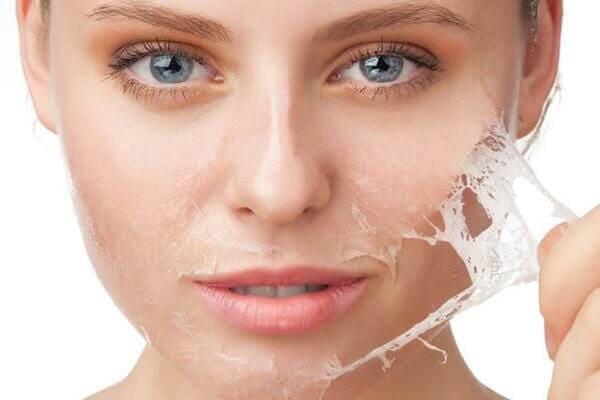 Peel da là phương pháp làm đẹp không còn quá mới lạ trong điều trị mụn cám