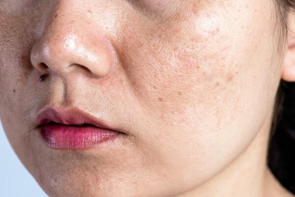 Serum có chứa vitamin E giúp da bạn cải thiện sắc tố hiệu quả - Serum vitamin E có tác dụng gì