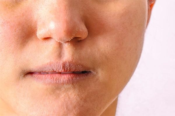 Sử dụng hoạt chất trị mụn có thể khiến da bị khô