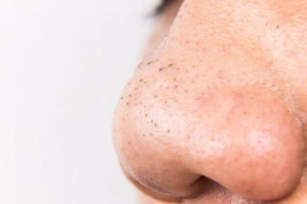Sự hình thành mụn đầu đen tập trung ở vùng mũi