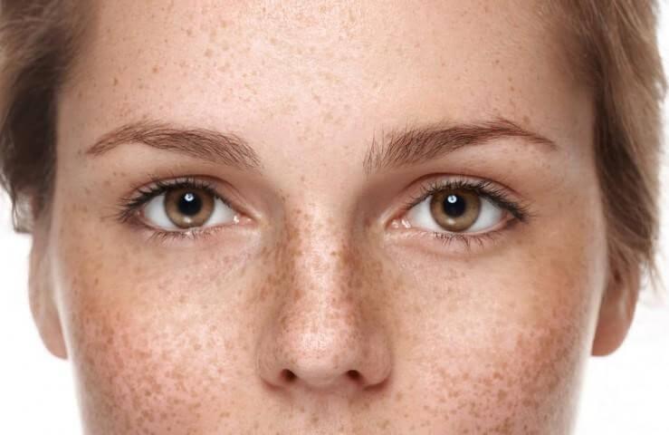 Nám da thường xuất hiện theo một vùng da