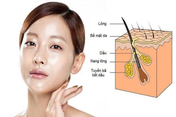 Tuyến bã nhờn hoạt động quá mức là nguyên nhân gây ra mụn đầu đen