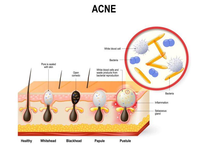 Vi khuẩn C.acnes tăng sinh tấn công gây ra mụn