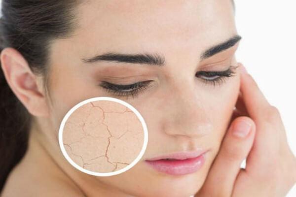 Việc lạm dùng các hoạt chất mạnh đặc biệt trong điều trị mụn sẽ khiến da trở nên khô rát