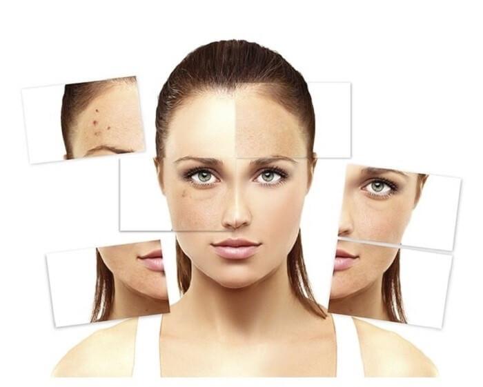 Cân nhắc kỹ khi dùng mỹ phẩm cho làn da nám - chăm sóc da mặt bị nám
