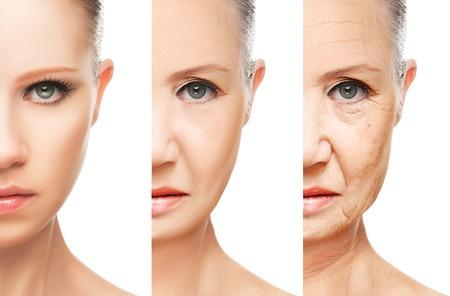 Làn da sẽ gawos nhiều vấn đề nếu không cung cấp đủ lượng collagen cần thiết