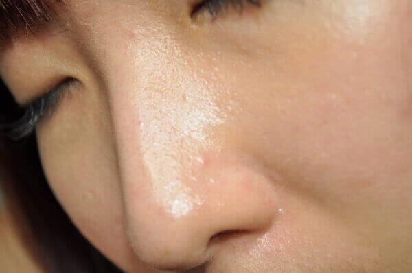 Da dầu nhờn là một trong những nguyên nhân gây mụn cho da. - toner cho da dầu