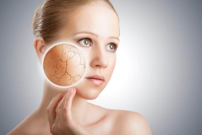 Da khô thường thiếu nước và dễ bị bong tróc - chăm sóc da mặt khô