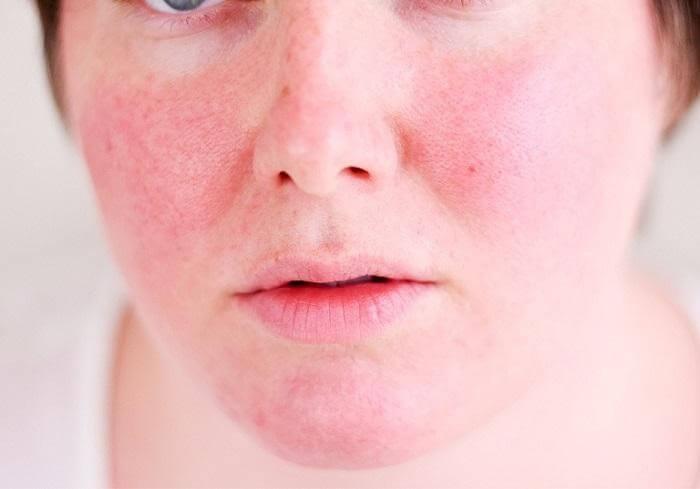 Da mặt bị dị ứng sẽ mẩn đỏ và gây khó chịu