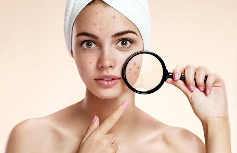 Da khô sau khi sử dụng sữa rửa mặt có độ tẩy rửa cao.
