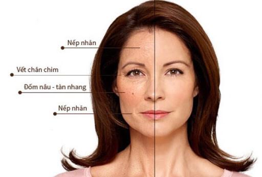 Lão hóa da cũng là nguyên nhân gây lên tình trạng nám và tàn nhang