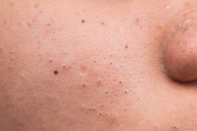 Mụn đầu đen khiến da mặt mất thẩm mỹ - cách trị mụn đầu đen