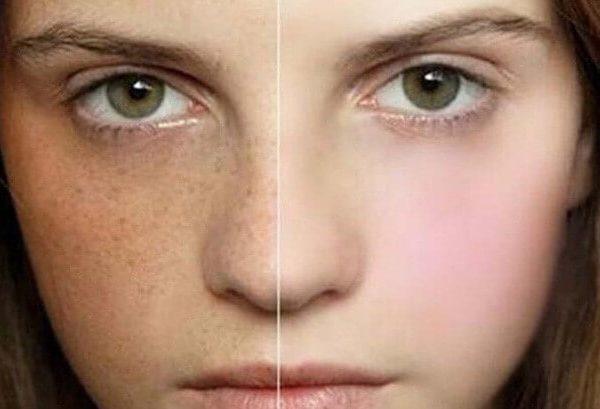 Nám da khiến phái đẹp thiếu tự tin với làn da kém tươi
