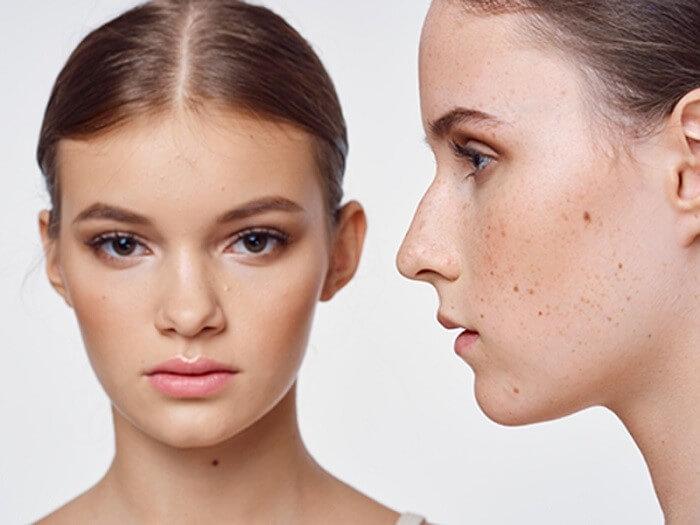 Nám và tàn nhang gây mất thẩm mỹ cho gương mặt