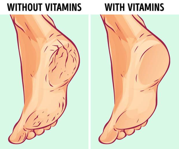 Nứt gót chân là tình trạng bong tróc, nứt nẻ phần da ở gót chân