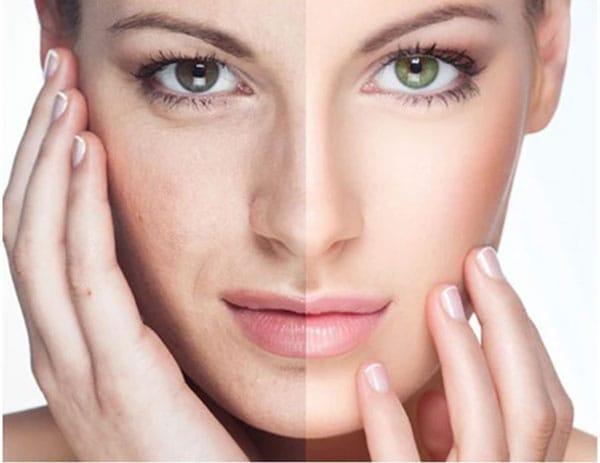 Tẩy tế bào chết giúp da được thay mới – tươi trẻ và sáng mịn hơn