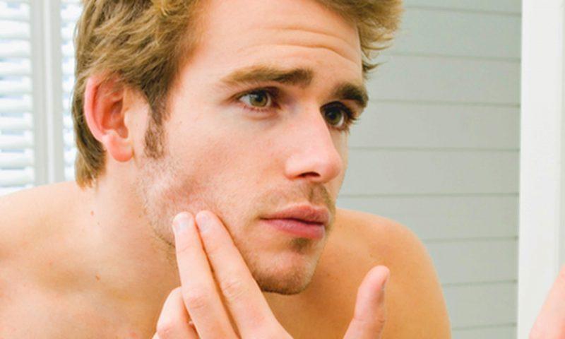 Tìm hiểu nguyên nhân gây mụn ở nam giới để có cách điều trị hiệu quả