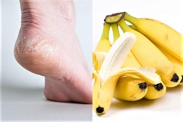 Trị nứt gót chân với chuối