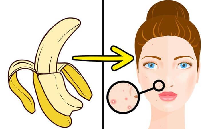 Vỏ chuối có tác dụng tuyệt vời trong việc trị mụn